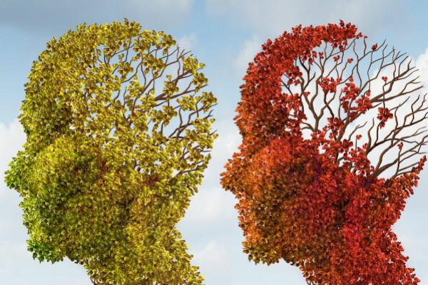 Brain Aging Resize